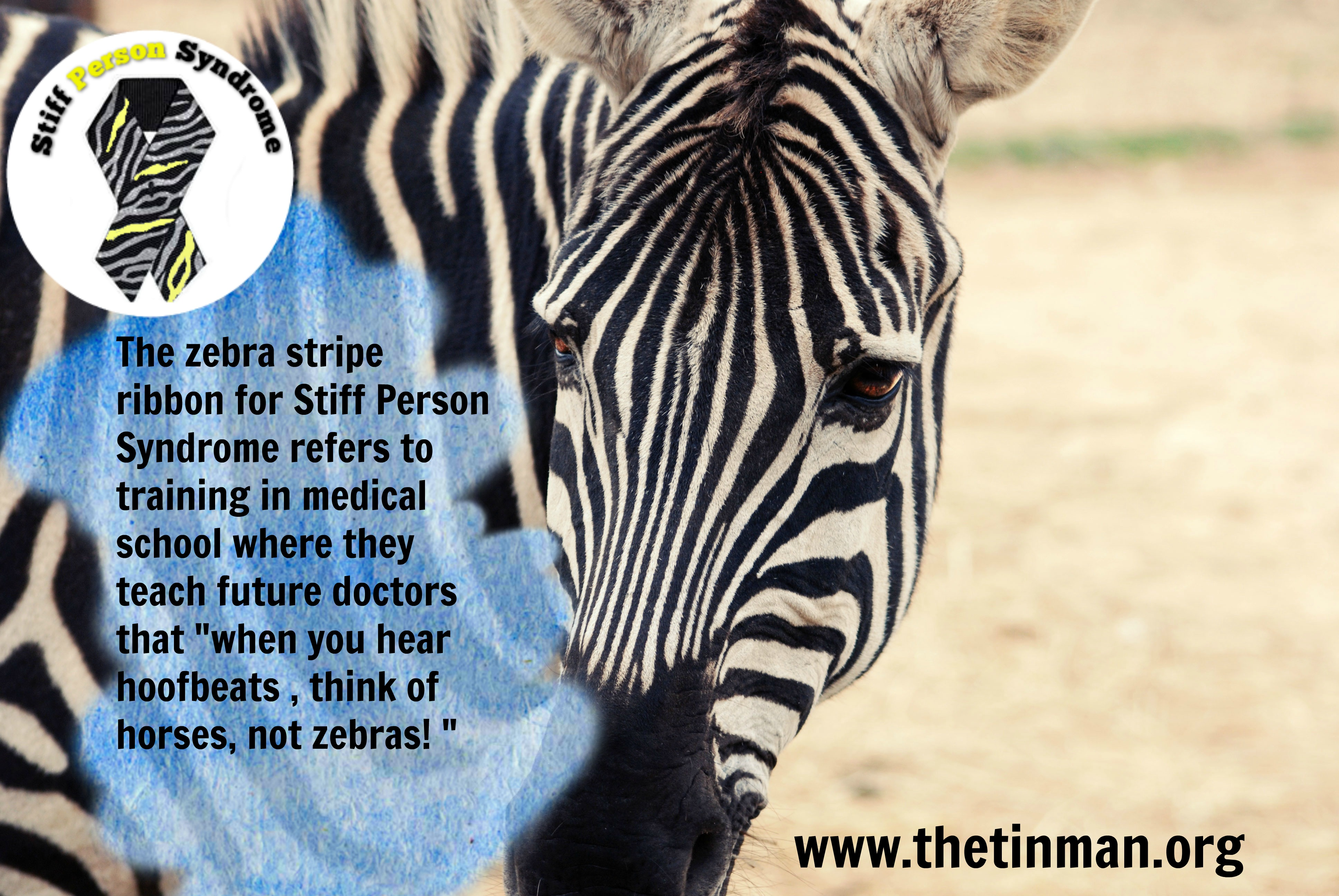 "A zebra with text ""The zebra stripe ribbon for stiff person syndrome refers to training in medical school where they teach future doctors that ""when you hear hoofbeats, think of horses not zebras!"""